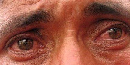 Ślepota śnieżna – poradnik medyczny